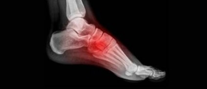 Ankle, Foot Pain Conditions