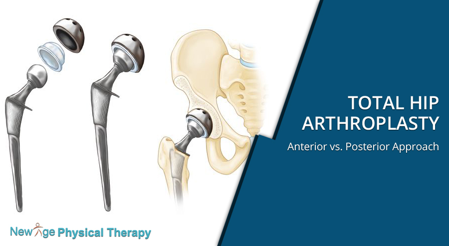 Total Hip Arthroplasty – Anterior vs  Posterior Approach